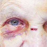 Betrunkener rammt sich Pfannenstiel ins Auge (Foto)