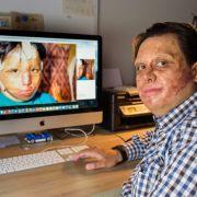 Nach dem Inferno - Opfer Marc-David Jung erinnert sich an das Unglück! (Foto)