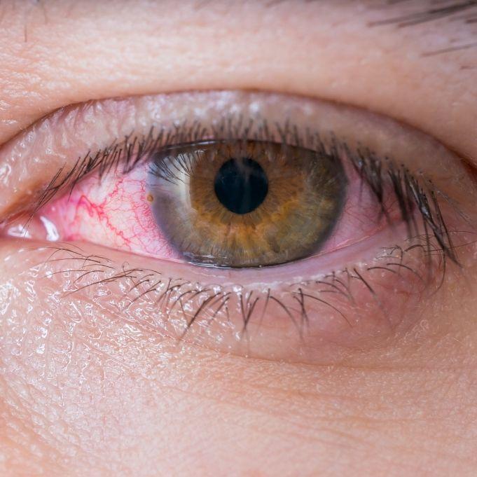 Ekelfund! Ärzte ziehen 15-Zentimeter-Parasit aus Auge (Foto)