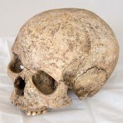 Lebendes Skelett! Mann ohne Nase und Ohren will sich PENIS abhacken (Foto)
