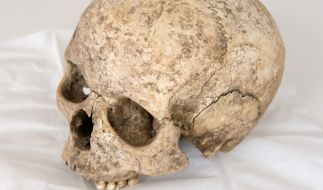 Wie ein skelettierter Schädel auszusehen - das ist der Lebenstraum von Eric Yeiner Hincapie Ramirez aus Kolumbien (Symbolbild). (Foto)