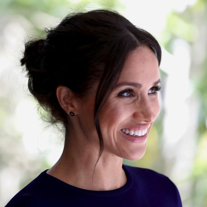 Heimliche Beauty-OP? Diese Fotos der Herzogin sorgen für Gerüchte (Foto)