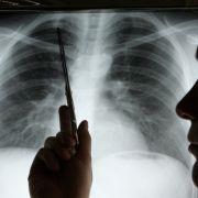 Frau stirbt an Lungenkrebs, weil Spenderin Kette rauchte (Foto)