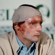 Lauda zog sich durch den Unfall schwere Verbrennung zu. Doch 42 Tage nach seinem Crash saß er wieder hinterm Steuer.