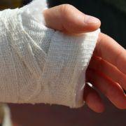 Bei lebendigem Leibe verfault! Mann rotten die Hände weg (Foto)