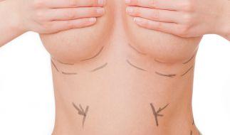 Wer schön sein will muss leiden... vor allem wenn die Schönheits-Operation schief geht. (Symbolbild) (Foto)