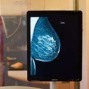 Neuer Bluttest erkennt zuverlässig Brustkrebs (Foto)