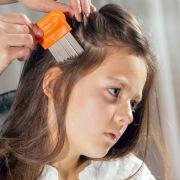 Mädchen will Kopfläuse loswerden - und geht in Flammen auf (Foto)