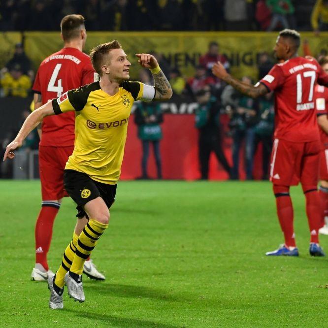 """""""Dortmund hat keine Eier!"""" So tippen die Promis das Spiel FCB - BVB (Foto)"""