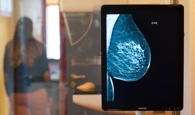 Brustkrebs-Vorsorge beim Arzt