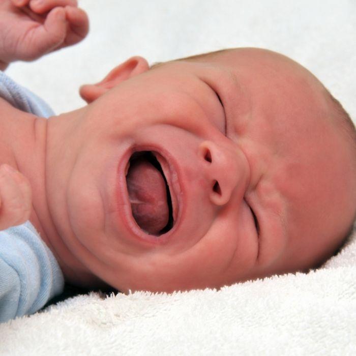 Seltene Krankheit! Baby kommt ohne Haut auf die Welt (Foto)