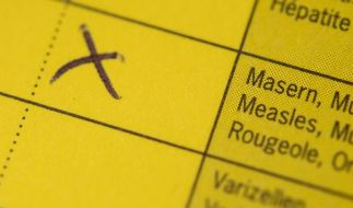 Ein an Masern erkrankter Mann ist in Niedersachsen gestorben. (Symbolbild) (Foto)