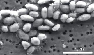 Die meisten Bakterien können in der Regel nur Menschen mit schwachem Immunsystem gefährlich werden. (Foto)
