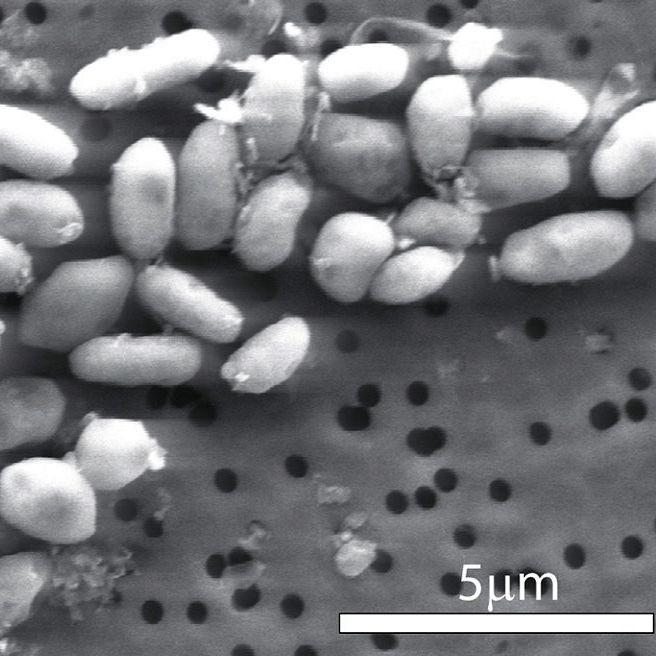 Tod in 48 Stunden! Strandbesucher (66) von Bakterien zerfressen (Foto)