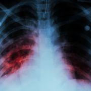 Neue Lungenkrankheit durch E-Zigaretten? (Foto)