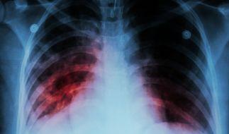 Löst die E-Zigarette in der Lunge eine neue Krankheit aus? (Foto)