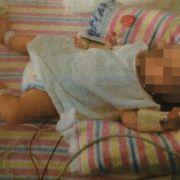 Schock-Foto! DIESES Kind ist bereits 19 Monate alt (Foto)