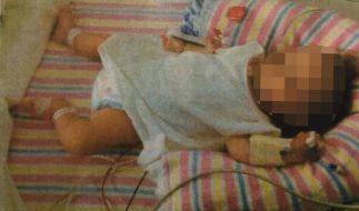 Mit 19 Monaten sah das Mädchen noch immer aus wie ein drei Monate altes Baby. (Foto)