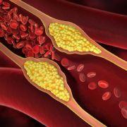 Gewusst? DIESE Lebensmittel wirken cholesterinsenkend (Foto)