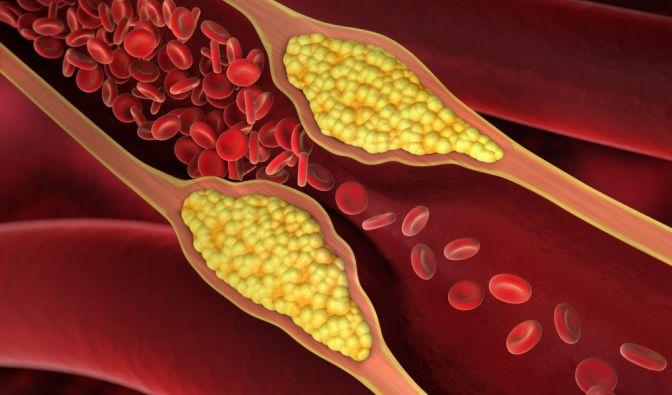 Cholesterin senken ohne Medikamente