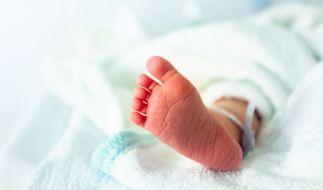 In Aserbaidschan wurde ein Baby mit extremen Fehlbildungen geboren. (Foto)