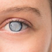 Influencerin erblindet nach Augen-Tattoo (Foto)