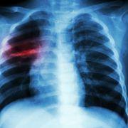 Zerstörte Lunge! Schock-Fotos von Corona-Patienten veröffentlicht (Foto)