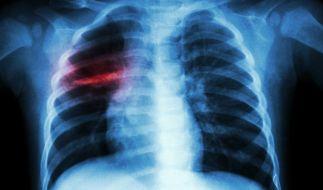 Röntgenbilder zeigen, wie sehr das Coronavirus den Lungen schädigt. (Symbolbild) (Foto)