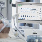 Forscher finden Antikörper, das Corona-Erkrankung neutralisieren könnte (Foto)