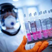 Schock-Studie! Corona-Viren befallen offenbar auch das Gehirn (Foto)