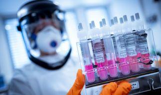 Forscher fanden heraus, dass Corona-Viren möglicherweise auch das Gehirn befallen. (Foto)