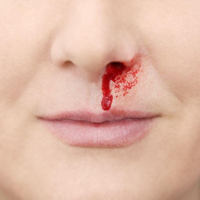 Schock! Frau (26) verliert nach Nasenbluten das Gedächtnis (Foto)