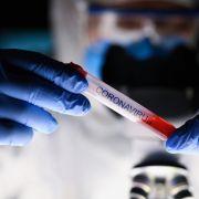 Ebola, Grippe, Krätze: DIESE Medikamente könnten Covid-19 heilen (Foto)
