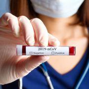 Ärzte warnen! Schadet DIESE Behandlungsmethode Corona-Patienten? (Foto)