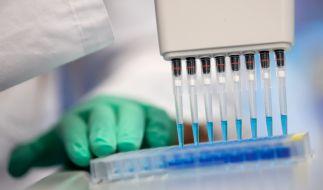 Eine belgische Firma will aussagekräftige Antikörpertests entwickelt haben. (Foto)