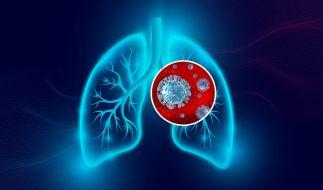 Auch bei milden Covid-19-Krankheitsverläufen sind offenbar Schädigungen der Lunge möglich. (Foto)