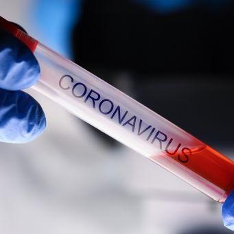 Professor behauptet: Coronavirus verschwindet nach 70 Tagen ohne Eingreifen (Foto)