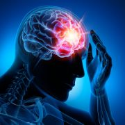 Mediziner besorgt! Covid-19 steigert Schlaganfall-Risiko bei jungen Menschen (Foto)
