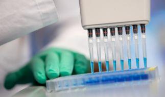 Ein neuartiger Coronavirus-Antikörpertest soll in Deutschland noch im Mai in millionenfacher Ausfertigung verfügbar sein. (Foto)