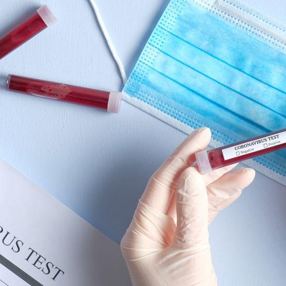 Sars-CoV-2 in Sperma nachgewiesen! Ansteckung beim Sex doch möglich? (Foto)