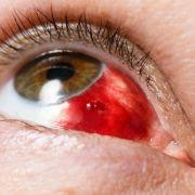 Sonnenbrand im Auge! SO schützen Sie Ihr Augenlicht (Foto)