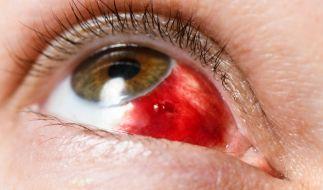 UV-Strahlung schadet dem Auge: So schützen Sie ihr Augenlicht. (Foto)