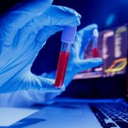 Schwestervirus entdeckt! Corona-Ursprung endlich identifiziert? (Foto)