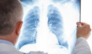Der britische Radio-Moderator James Whale kämpft unter anderem gegen Lungenkrebs (Symbolbild). (Foto)