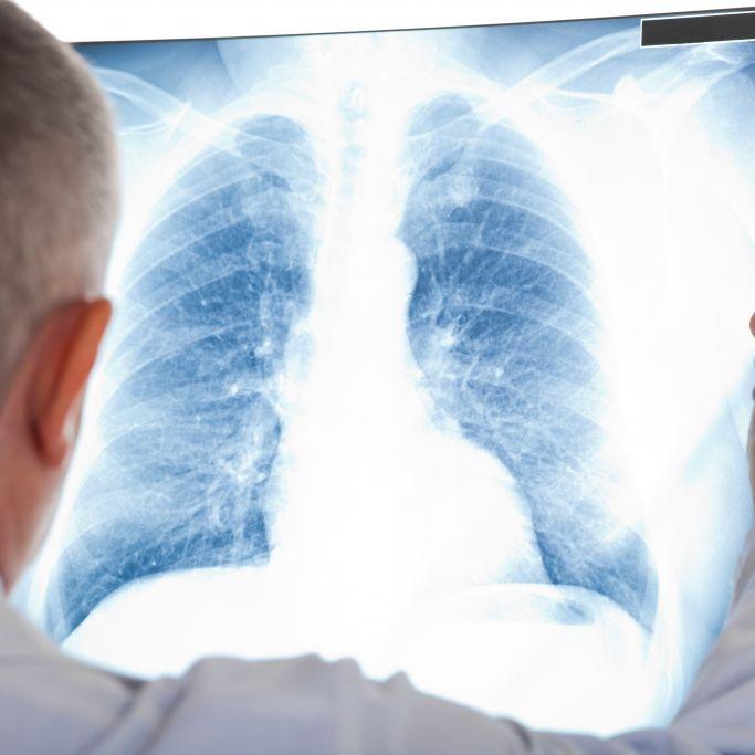 Horror-Diagnose! Radio-Moderator kämpft gegen den Krebs (Foto)