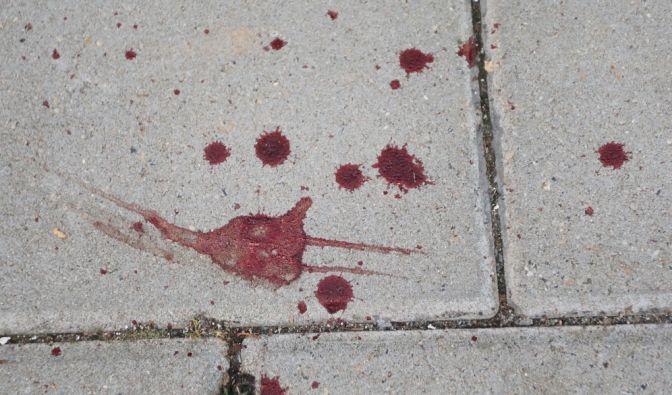 Brutale Messerattacke in Stolberg