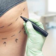 Frau (42) stirbt nach Po-Vergrößerung - Arztfehler nachgewiesen! (Foto)