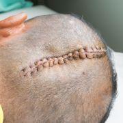 Hirnblutungen! Pferd zerdrückt Frau (43) den Kopf (Foto)