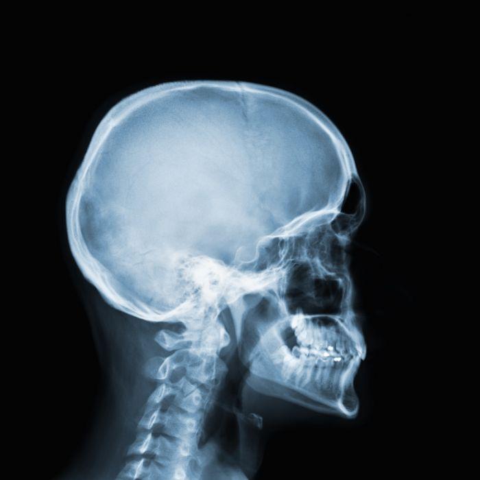 Achtung, Krebs! So gefährlich ist Röntgen für den Körper (Foto)