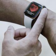 Durchbruch im Corona-Kampf: Apple Watch kann Corona früh erkennen! (Foto)